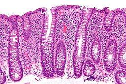 Irritable Bowel Syndrome (IBS) in Dogs - Veterinary Partner - VIN